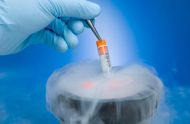 Методика заморозки спермы мужчины для отсроченного оплодотворения существуе