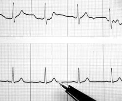mažas ramybės širdies ritmas nauda sveikatai)