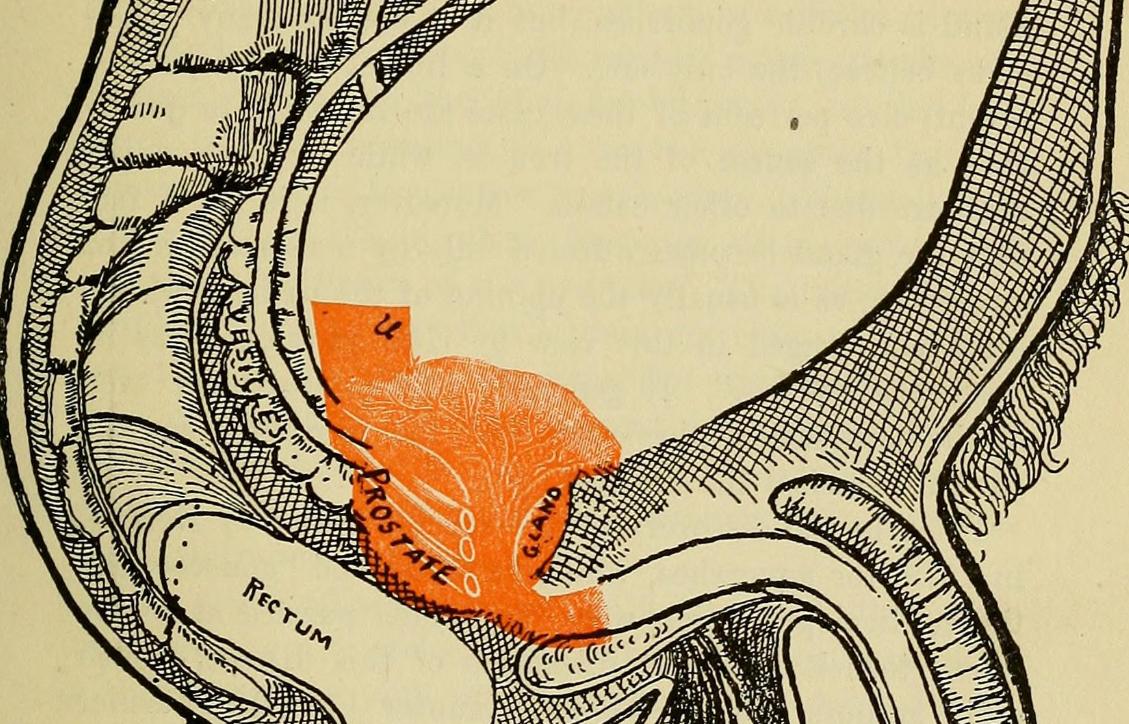 bloga erekcija su lėtiniu prostatitu